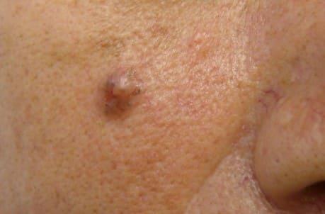 Melanoma y carcinoma basocelular